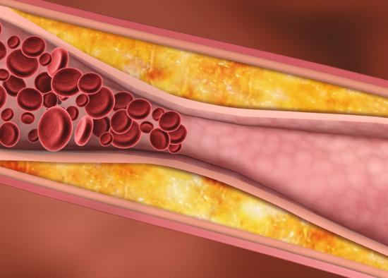Повышение уровня холестерина у мужчин