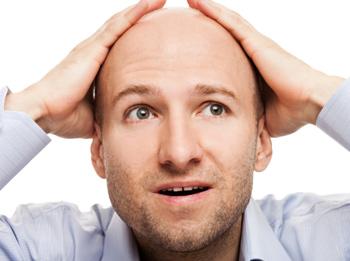 Облысение у мужчин, как лечить?