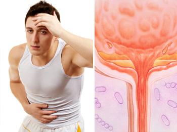 Цистит у мужчин: причины, симптомы, лечение