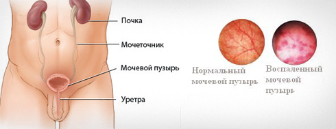 Цистит у женщин симптомы и лечение причины цистита и профилактика